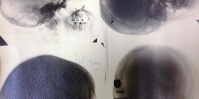Planche photographique de radiographies du crâne, extrait d'un dossier médical, cote 1H-DEPOT2R9