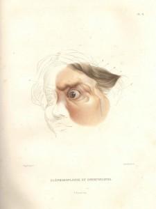 Traité de chirurgie plastique par A.J. Jobert, 1849